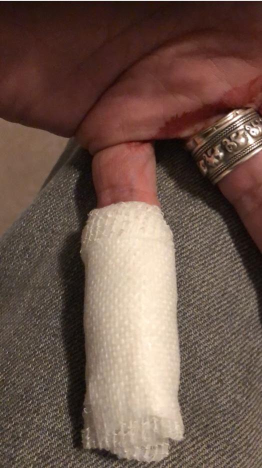 Finger gestern