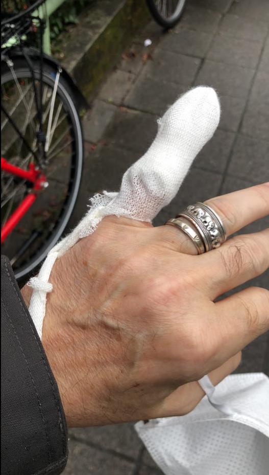 Finger heute